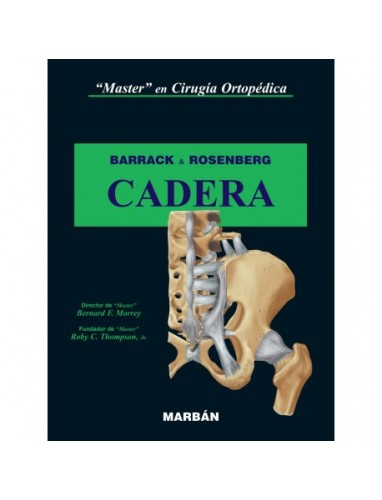 Barrack, Master en cirugia ortopedica Cadera. Tapa Rustica