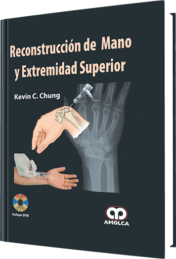 Chung, Reconstruccion de Mano y Extremidad Superior