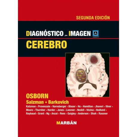 Osborn, Serie Diagnostico por Imagen: Cerebro 2a Ed.