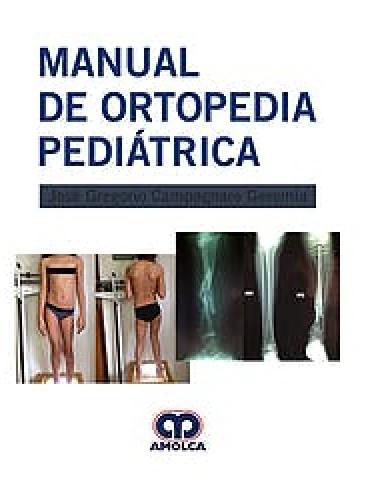 Campagnaro Manual de Ortopedia Pediatrica